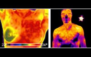 infrarosso medio applicazioni medicali