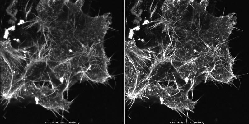 N1E 115 neuroblastoma cells